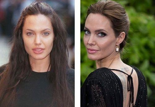 Angelina Jolie Bichectomie Boules de Bichat