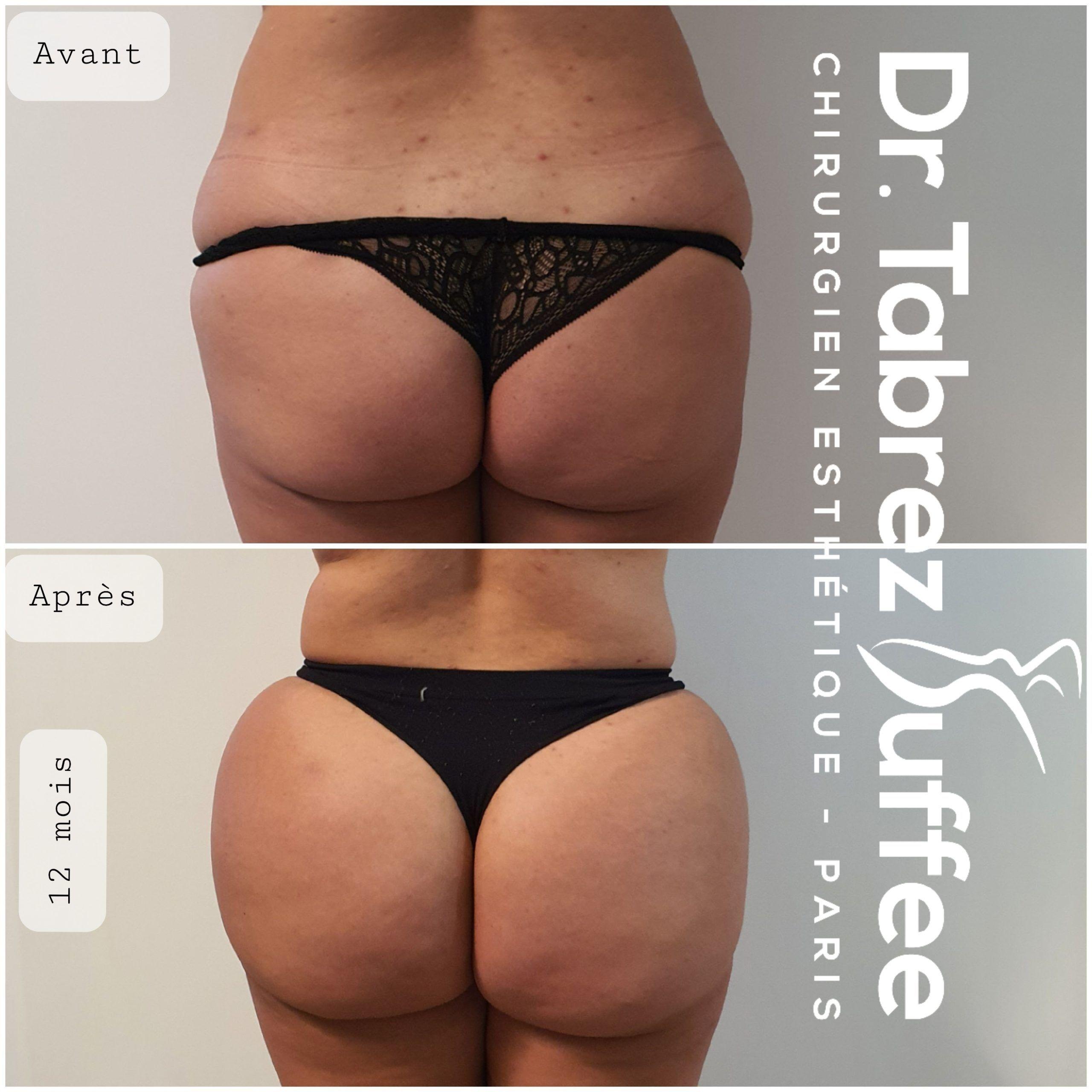 Brazilian Butt Lift, lipofilling fesses sans anesthésie générale