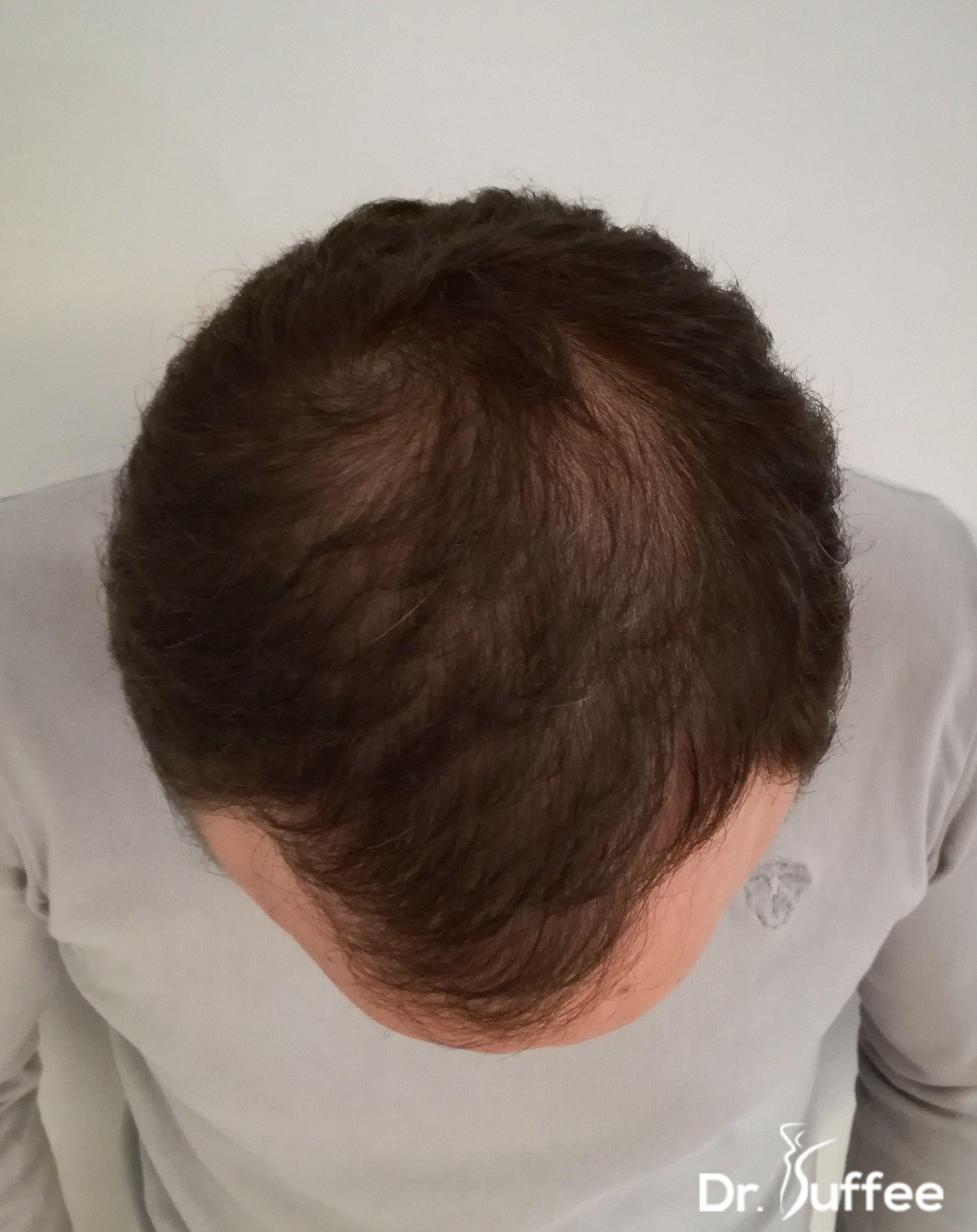calvitie alopécie homme