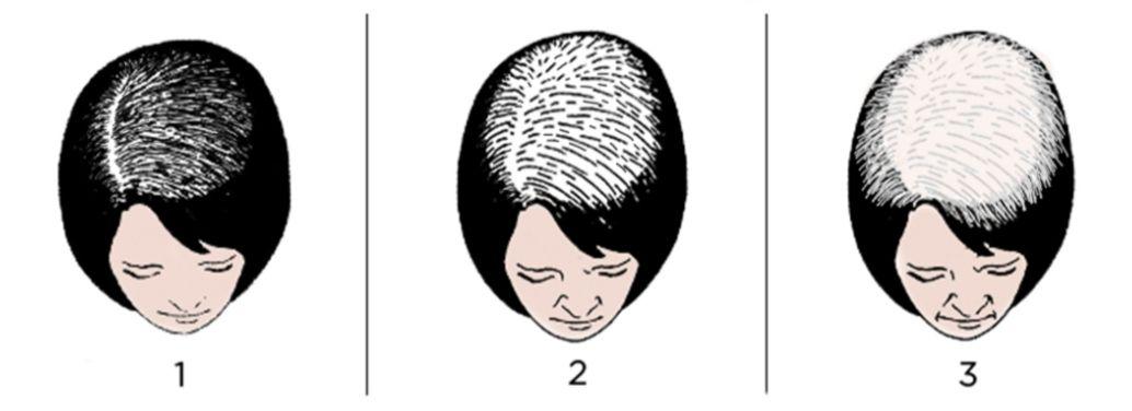 perte de cheveux femme