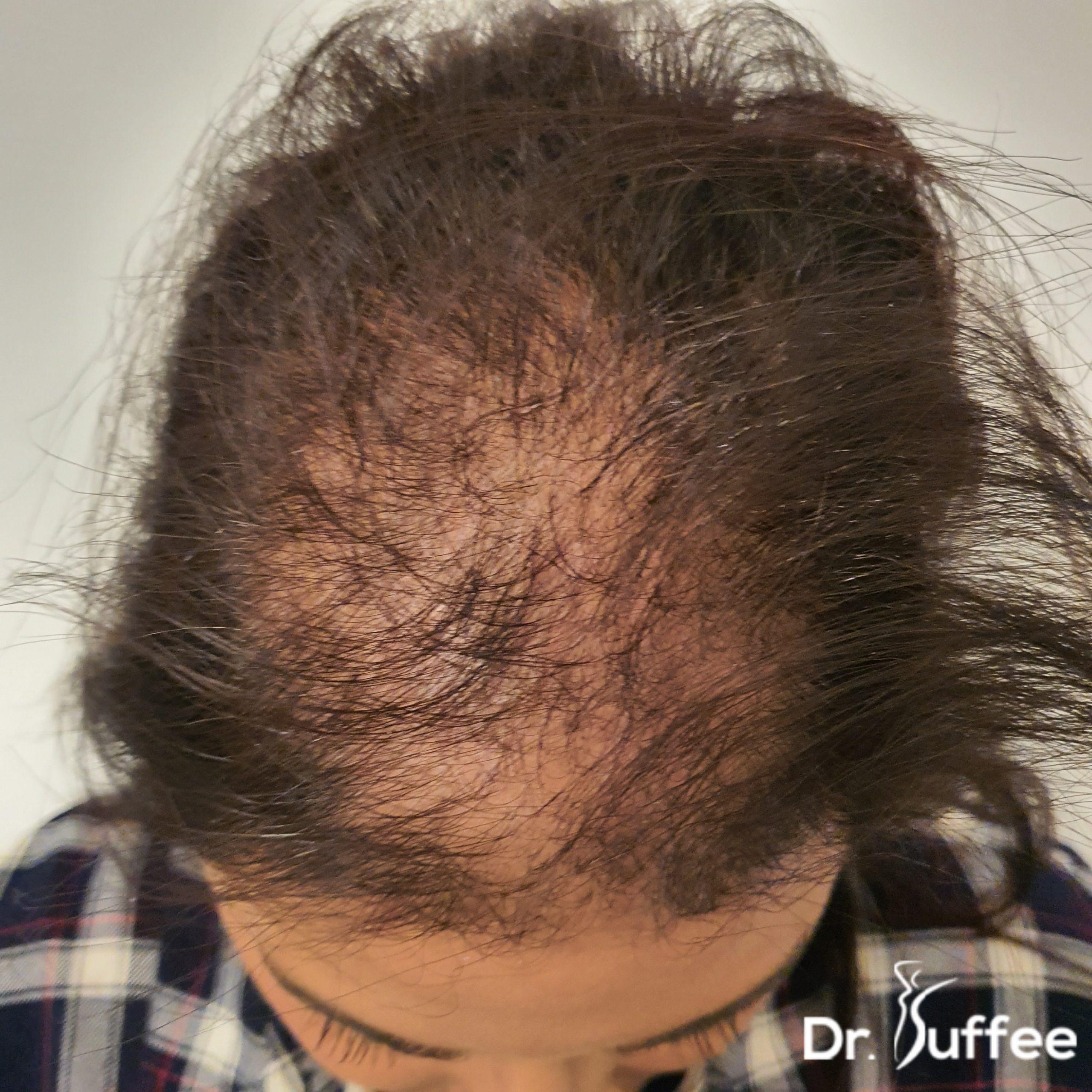 Greffe de cheveux femme